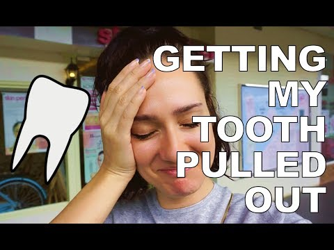MY TOOTH BROKE IN HALF | PHILIPPINES