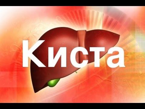 Гепатит как приобретается