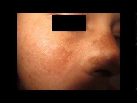 Laban freckles at edad spot perpektong whitening facial mask Belita-Vitex Whitening Mask