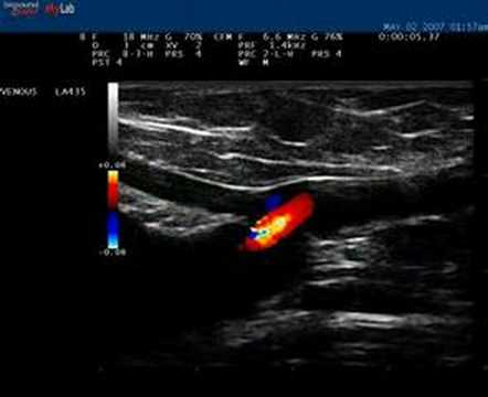 Ginnastica correttiva a video thrombophlebitis
