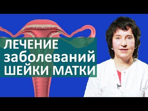Der Abmagerung für die Woche auf 20 ru