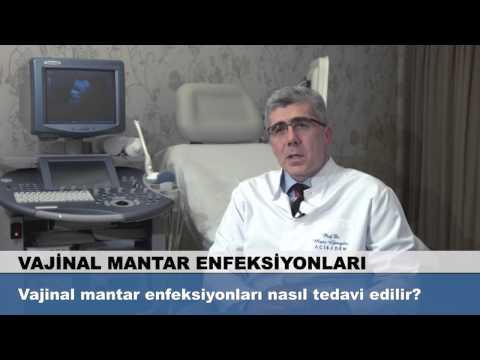 Vajinal mantar enfeksiyonları nasıl tedavi edilir?
