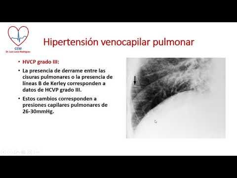 Críticas sobre el tratamiento de la hipertensión remedios populares