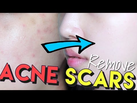 Video How To Get Rid of Acne Scars & Hyperpigmentation • Get Brighter Skin!