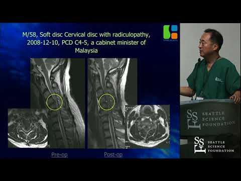 Endoskopowe zabiegi w odcinku szyjnym kręgosłupa