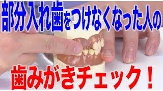 部分入れ歯をつけなくなった人の歯みがき時のチェックポイント