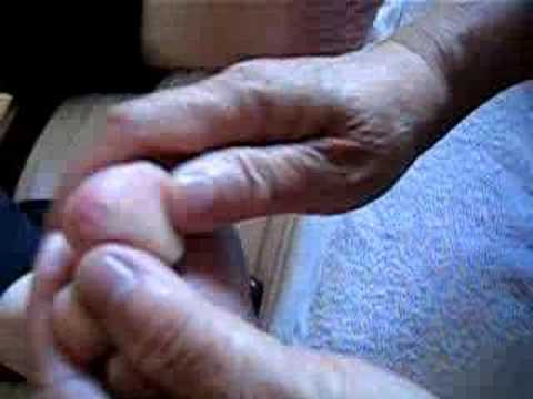 Video Demonstration For Foot Massage About High Blood Pressure