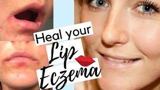 How To Heal Eczema On Lips | How To Treat Lip Eczema Naturally | Lip Eczema Treatment