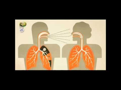Paa halamang-singaw sa mga bata mga sintomas at paggamot