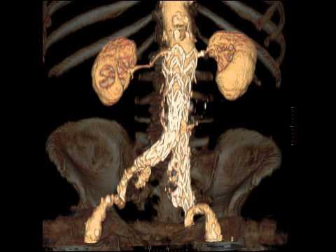 Gli esercizi per rafforzare la posizione di vene