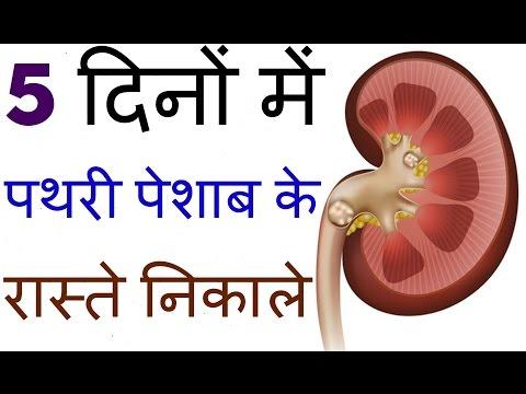 Video kidney stone treatment in hindi ||Home Remedies for Kidney Stones || 5दिनों में पथरी पेशाब के रास्ते