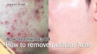 Acne treatment Ep 04 : How to remove Pustules Acne