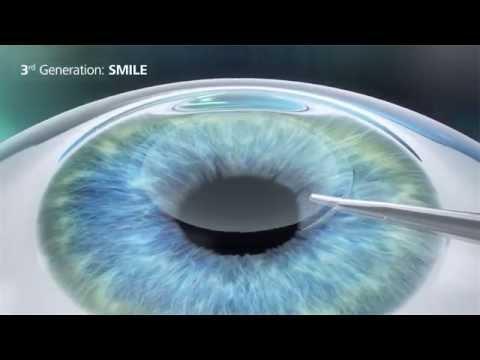 Fordítsa meg a látását