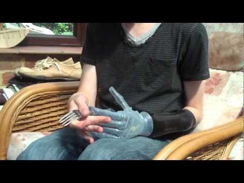 Schmerzende Gelenke der Hand, was zu tun