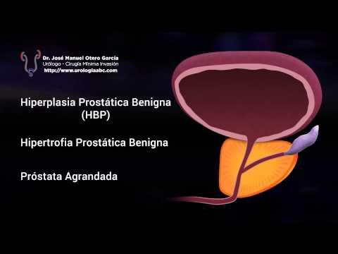 Nexus prostata massaggiatore revo 2