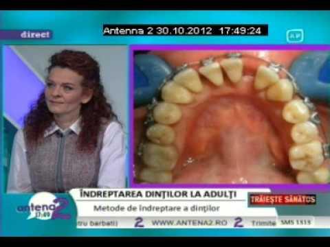 Dr. EMILIA MILICIN – Antena2 – Îndreptarea dinților la adulți