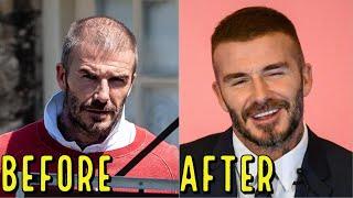 DAVID BECKHAMS AMAZING HAIR LOSS TRANSFORMATION! DID HE GET A HAIR TRANSPLANT?