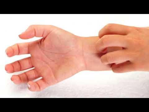 Die Salben für die Behandlung der Schuppenflechte mit solidolom