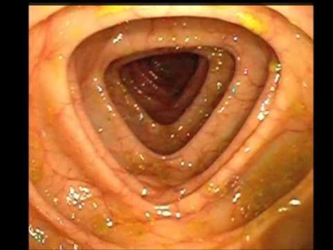 Die Parasiten auf der Haut der Hände des Menschen