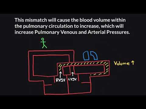 Hypertensive Krise Herzeleid