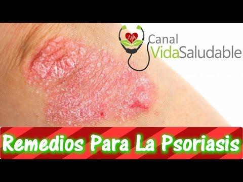 Che aiutare il bambino a dermatite atopic