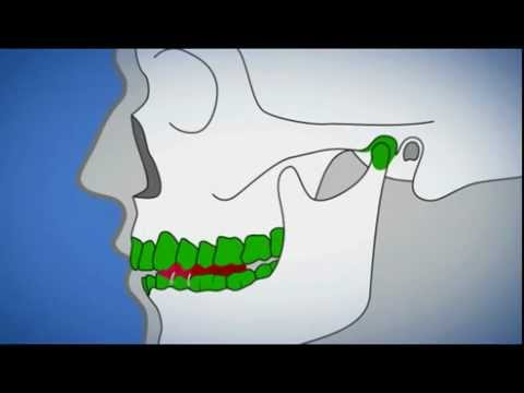 Volks Behandlung der zervikalen Osteochondrose