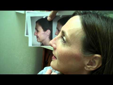 Dr. Epstein – Post-Op Rhinoplasty Procedure