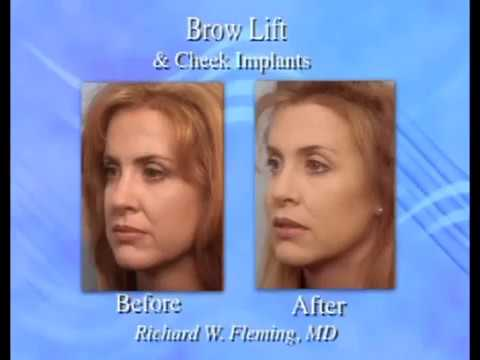Can A Browlift Eliminate Botox