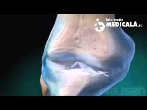 Tratamentul artrozei genunchiului 2 grade