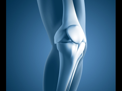 Knee Replacement durch die Quote in Wolgograd