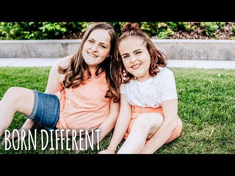 The Twins That Were Cut In Half   BORN DIFFERENT