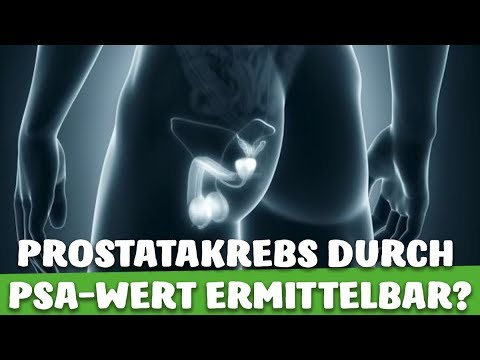 Prostata-Operation in der unteren Novgorod