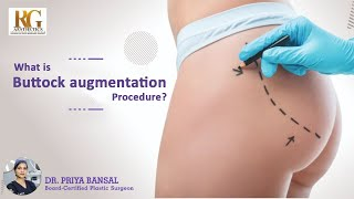 What is Buttock Augmentation Procedure?