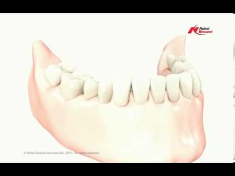 Educational-Video-about-Low-Cost-Dental-Bridge-in-India
