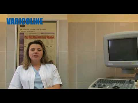 Operarea cu diabet sahornom