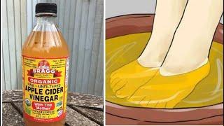 Watch What Happens When You Soak Your Feet In Apple Cider Vinegar