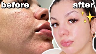 How To Get Rid Of DRY And TEXTURED SKIN | Skincare Routine