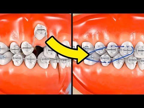 Dental Braces at Best Price in India