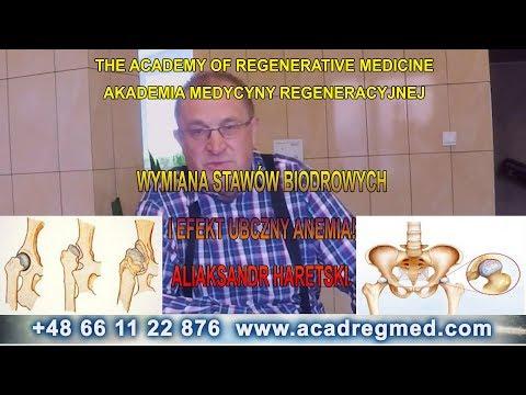 Objawy zapalenia stawów palców stawów i leczenie