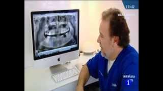 Lumineers y el Dr. F. Moraleda en Las Mañanas de la 1 - Smilelife - Dres. Moraleda & Asociados