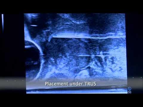 Endoskopowa chirurgia raka prostaty