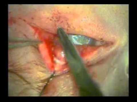 Kapak Dönmesi (Çocuk) - Op.Dr.Levent Akçay