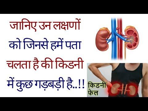 Diabetes insipidus entwickelt, bei denen das Fehlen