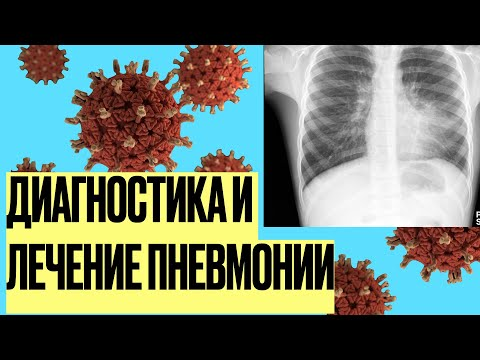 Диагностика и лечение пневмонии