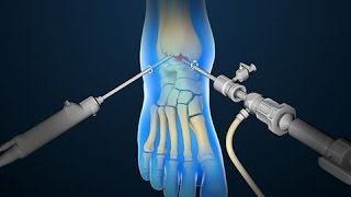 Ankle Scope | Arthroscopy | Nucleus Health