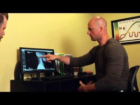 Esercizio al lombare trattamento dellernia intervertebrale