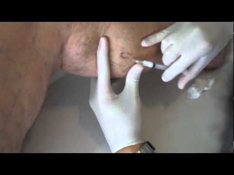 La varice variqueuse à la place intime