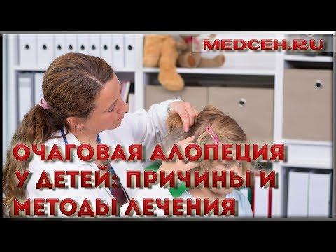 Очаговая алопеция у детей причины и методы лечения
