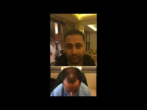 Hair Transplant Review Before & After