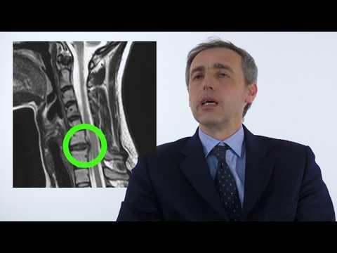 Emangioma del trattamento nazionale, colonna cervicale